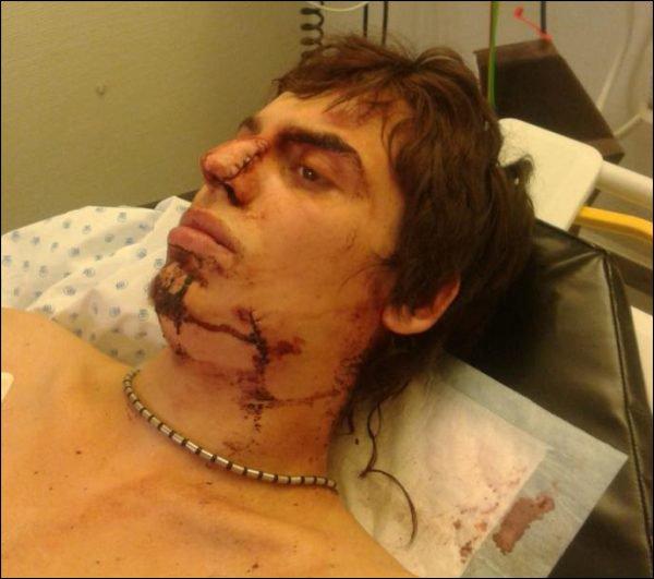 Lausanne visage lacéré couteau violence hopital blessé victime