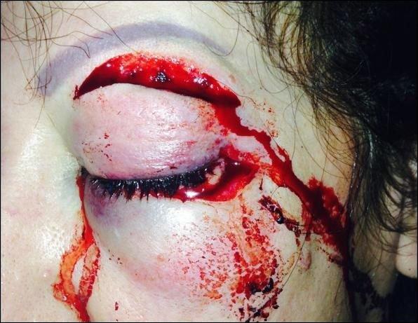 oeuil blessée femme battue sang violence taxi