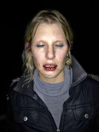suissesse femme blessée visage sang bouche